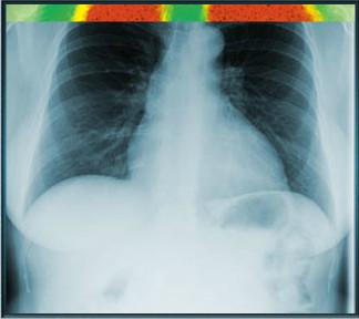 Röntgen Çekme Oyunu